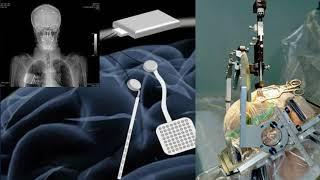 Latest Development in disease Cure. Pease maker. وینڈ نامی دماغی پیس میکر