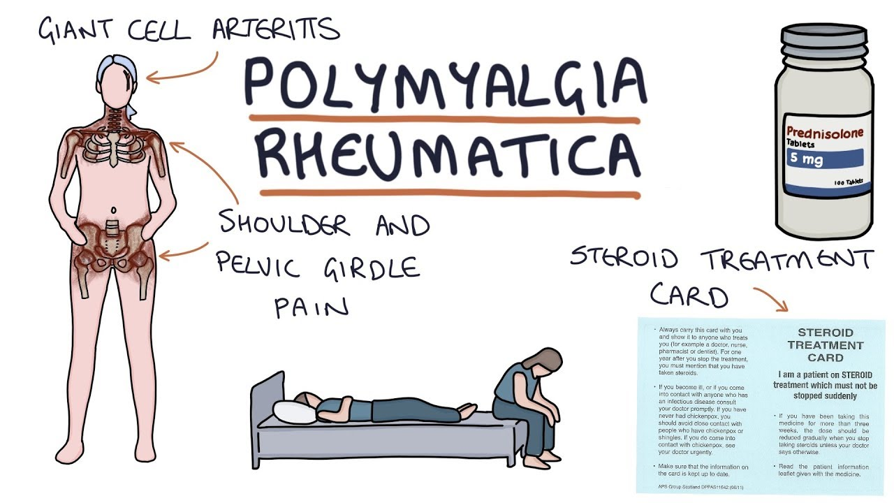 Download Polymyalgia Rheumatica: Visual Explanation for Students