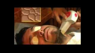 Фототермическая лазерная терапия в клинике Шихирмана(, 2009-04-17T08:22:06.000Z)