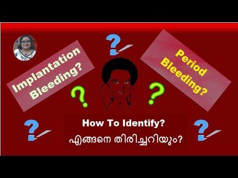 Implantation Bleeding OR Period Bleeding? How To Identify? എങ്ങനെ തിരിച്ചറിയും?