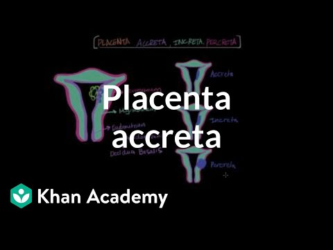 Diagnosing Placenta Accreta during pregnancy