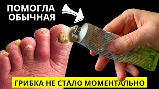 Эта ДОСТУПНАЯ ЯДРЁНАЯ Советская Мазь Разъест Весь Грибок с Ногтей! КАЖДЫЙ СМОЖЕТ СДЕЛАТЬ САМ!