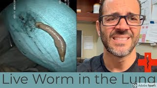 live worm in lungs
