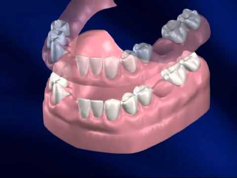 how to clean dental plate