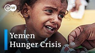 Yemen hunger crisis escalates | DW English