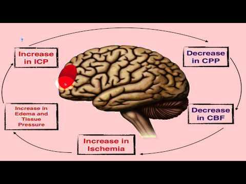 Increased Intracranial Pressure - ICP - EMTprep.com