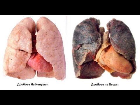 Топ съвети за здрав бял дроб