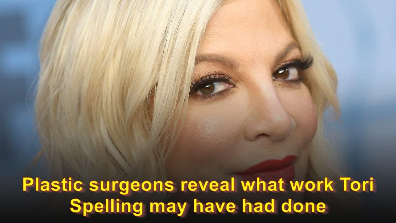 Plastic surgeons reveal what work Tori Spelling may have had done