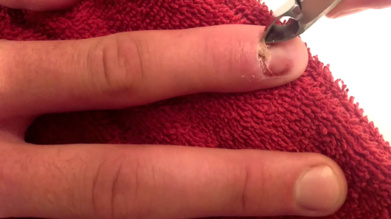 GROSS & WEIRD: Pulling dead nail from my nail bed. - YouTube