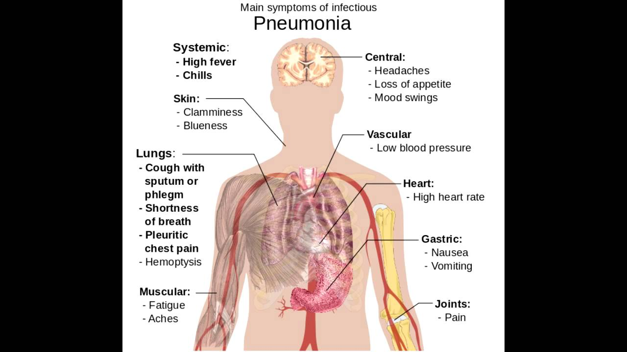 main symptoms of infectious pneumonia - youtube, Skeleton