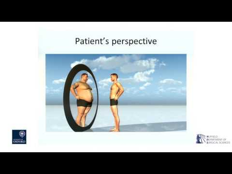 Oxford University surgical lectures: Bariatric surgery