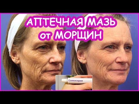 💥Аптечная МАЗЬ от МОРЩИН! Как избавиться от морщин на лице в домашних условиях