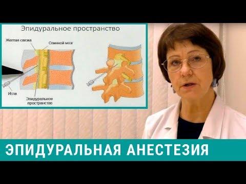 Болят ноги после эпидуральной анестезии