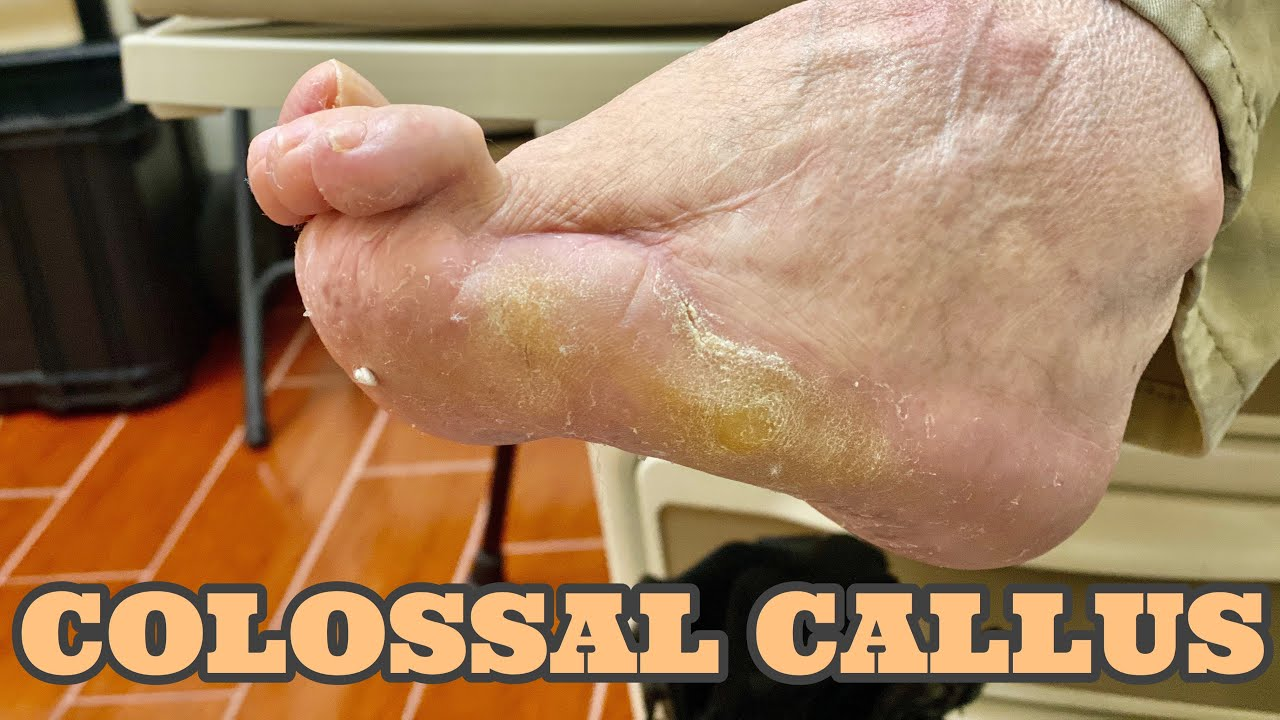 DEBRIDEMENT OF EXTREMELY HUGE CALLUS