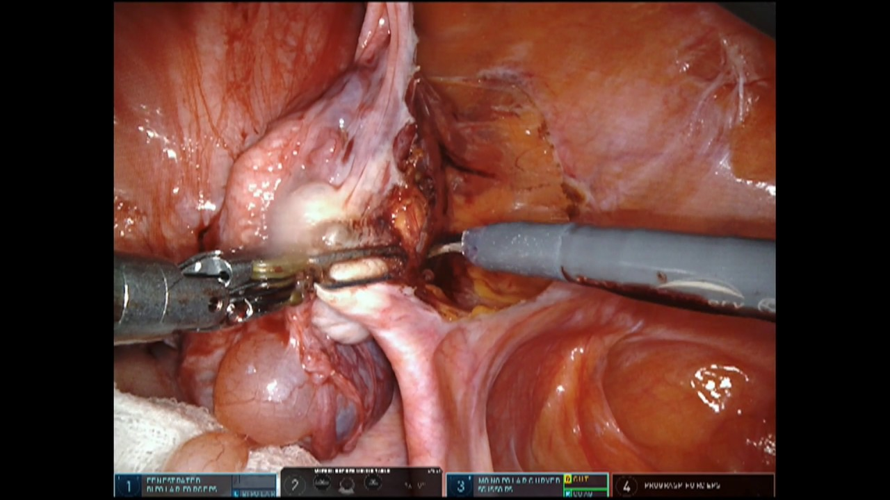 Download Complex hysterectomy using da Vinci Robot assisted surgery Dr. Rama Joshi