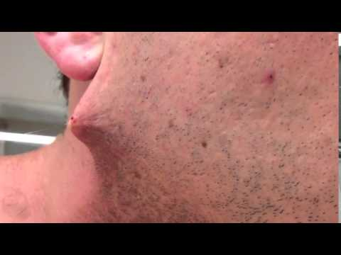 Man shaves his beard off but he got terrified when he found out...