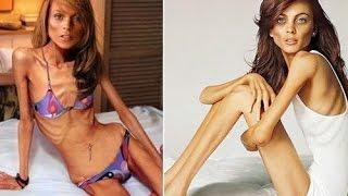 Топ 5 шокирующих случаев анорексии!