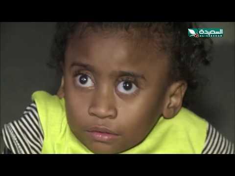 الطفلة غدير تعاني من عدة أمراض في حالة إنسانية بحاجة للمساعدة (27-12-2019)