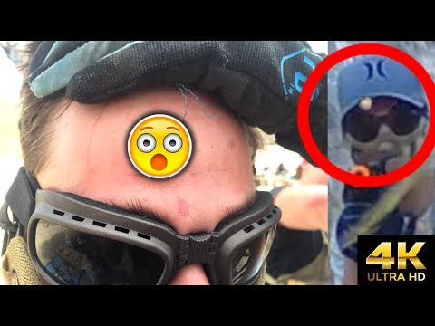 Why You Should ALWAYS Wear Face Protection