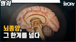 [EBS 명의 스페셜] 뇌종양, 그 한계를 넘다