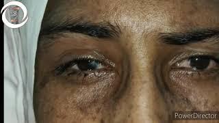 Allergic to the Sun (Xeroderma Pigmentosum).