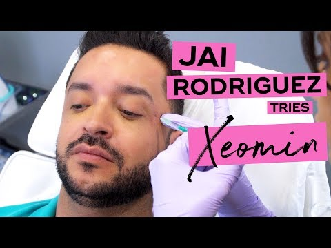 Jai Rodriguez Gets Xeomin at LaserAway Before and After Results