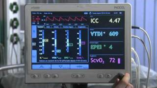 mesures hemodynamiques systeme picco