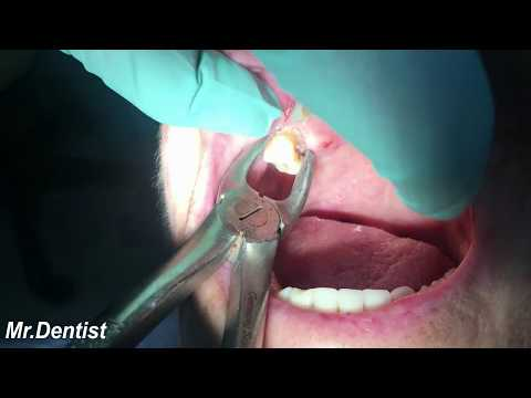 Extraction Of Molar Tooth !!!
