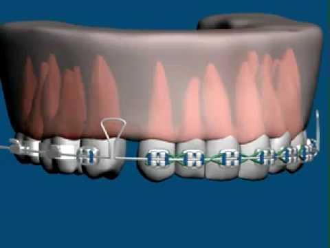 Cas traités en orthodontie orthodontistes Lemay.mov - YouTube