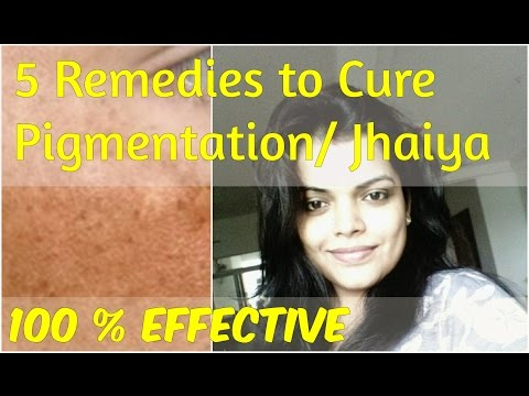 चेहरे की झाइयों का उपचार , Hyperpigmentation Causes, Treatment, Jhaiya on face Treatment in Hindi
