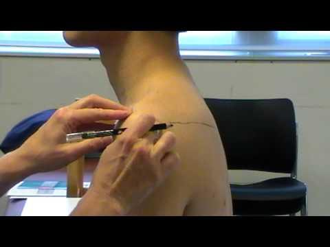 Surface Anatomy: Acromion Process