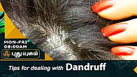 How to Get Rid of Dandruff Morning Cafe 20-07-2017 PuthuYugam TV Show Online