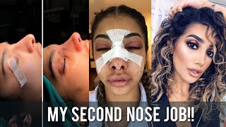 SECOND NOSE SURGERY EXPERIENCE VLOG | AnchalMUA