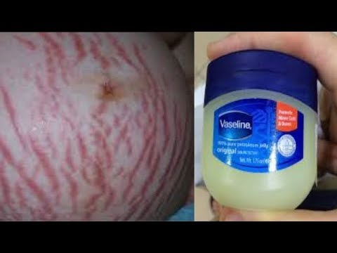 IN FEW DAYS REMOVE STRETCH MARKS AND SCARS PERMANENTLY