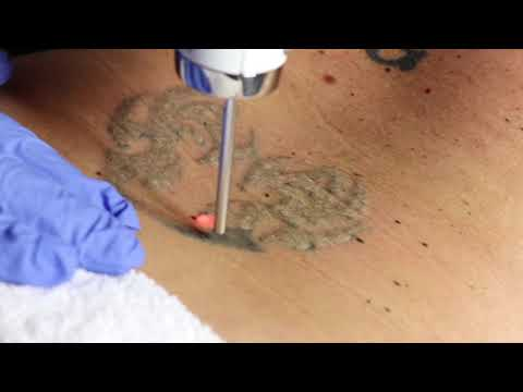 Laser Tattoo Removal with Enlighten Laser by Cutera