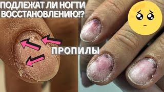 Клиент сам себе снял покрытие Какои итог Маникюр и дизаи н ногтей