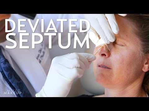 Rhinoplasty to Fix a Deviated Septum | PLASTIC with Dr. Dhir