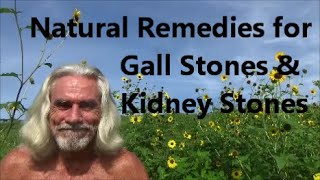 Natural Remedies for Gall Stones & Kidney Stones