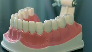 видео Рекомендации после удаления зуба