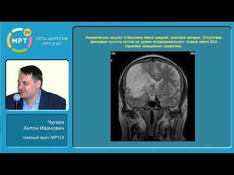МРТ диагностика ишемии головного мозга