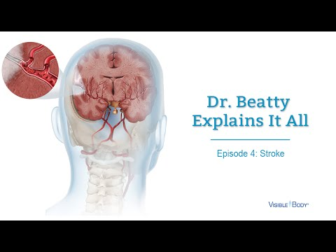Tiến Sĩ Beatty giải thích về đột quỵ