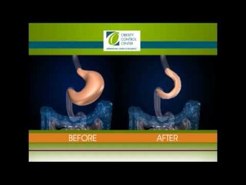 Gastric Plication Patients, Canada, Weight-loss Surgery Mexico, Stomach Sparing Gastric Sleeve