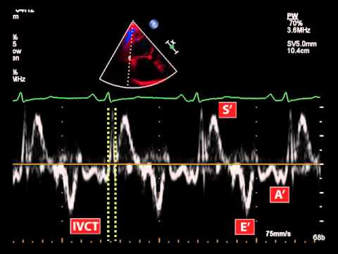 23. Myocardial performance index (Tei index) using tissue doppler
