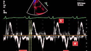 23. Myocardial performance index (Tei index) using tissue doppler