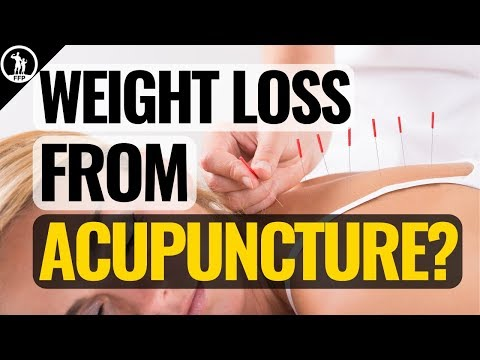 Ear Acupuncture Points For Weight Loss - Does Auricular Acupressure Actually Work?