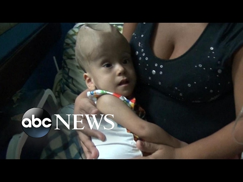 Breaking Point: Venezuela's Horrific Food, Medicine Shortage: Part 1