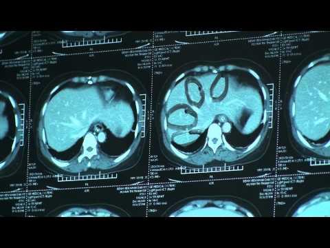 Giải phẫu phân thùy gan