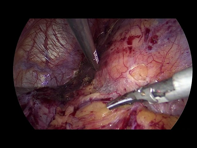 Evangelos Liatsikos - Laparoscopic Left Partial Nephrectomy