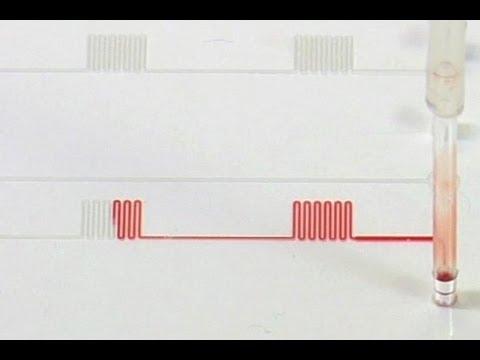 HIV-Test auf der Chipkarte