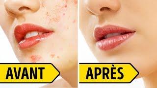 Traitement Après L'acné Pour se Débarrasser de Toutes Ses Cicatrices en 3 Jours